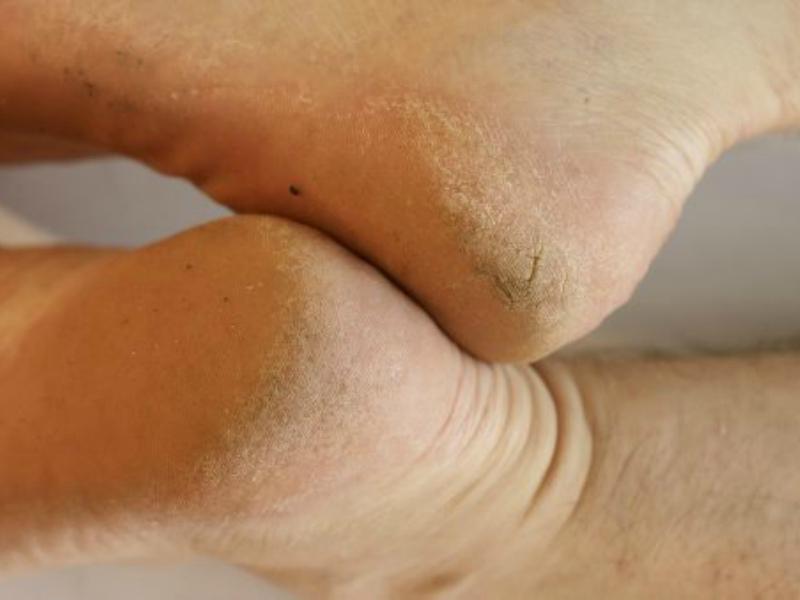 Четыре причины появления мозолей на ногах – и как с ними бороться