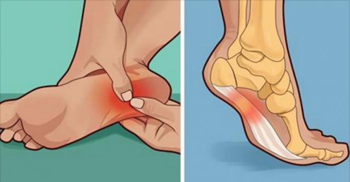 Болит ли ваша пятка утром или когда вы встаете? Вот, что вам нужно знать!