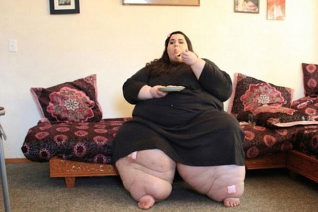 Год назад врач не хотел делать ей операцию. Он сказал, что ей надо хоть немного похудеть