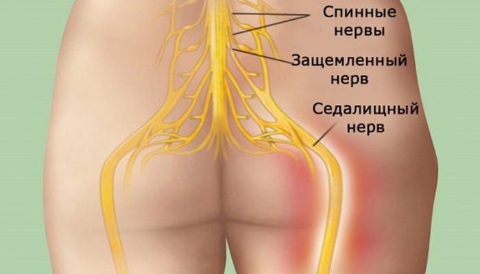 Попрощайтесь с болью в спине! Достижение успеха в 95 % случаев