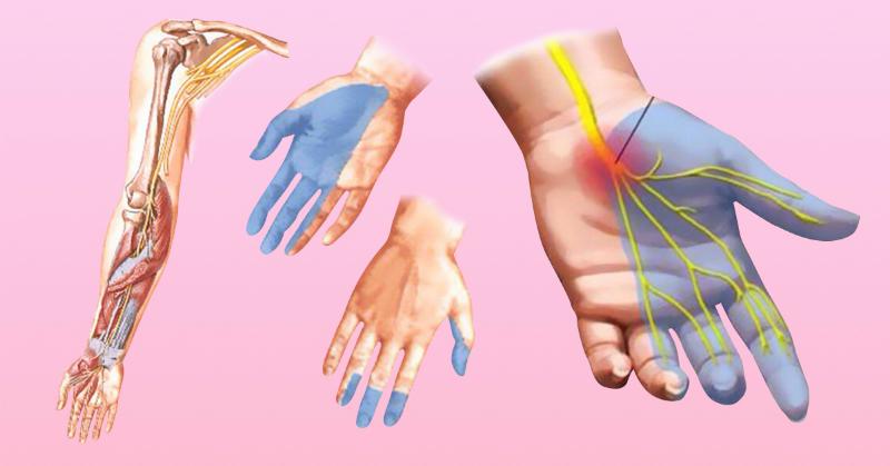 7 причин онемения рук