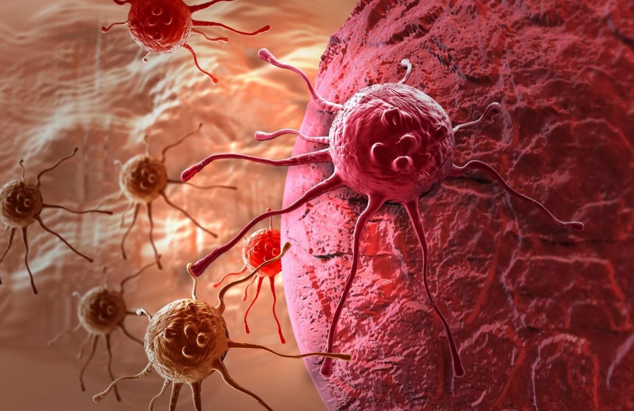 Не будь для Мира, «раковой опухолью» – и «раковая опухоль», не отразится в твоем теле