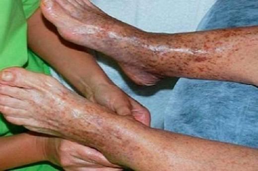 Эффективные советы о том, как решить проблему плохого кровообращения