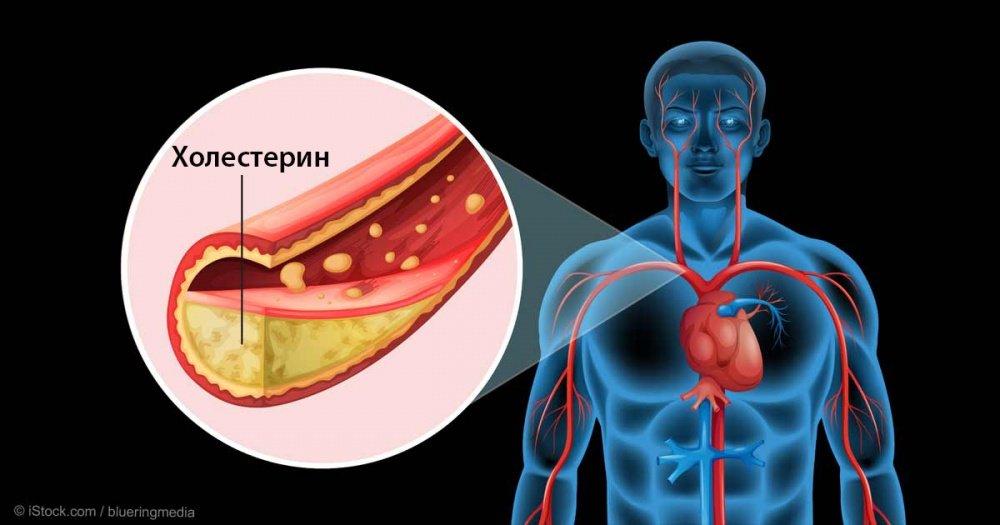 5 фруктов для снижения холестерина