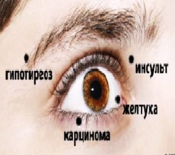 Зеркало души — 8 вещей, которые глаза пытаются сказать о вашем здоровье