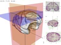Специалисты 'Ай-би-эм' разработали программу, трехмерного изображения человеческого тела, помогающую врачу при осмотре больного