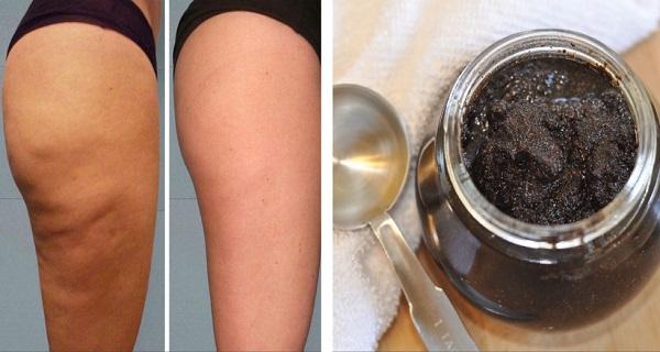 2 ингредиента для антицеллюлитной пасты: магический эффект!