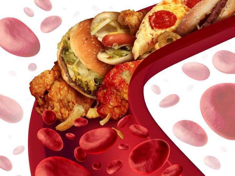 Пять продуктов, которые чистят сосуды от холестерина