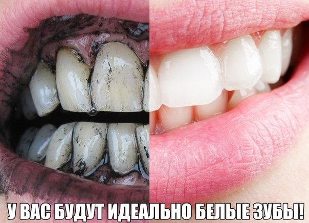 Как сделать зубы белыми народные средства - Gallery-Oskol.ru