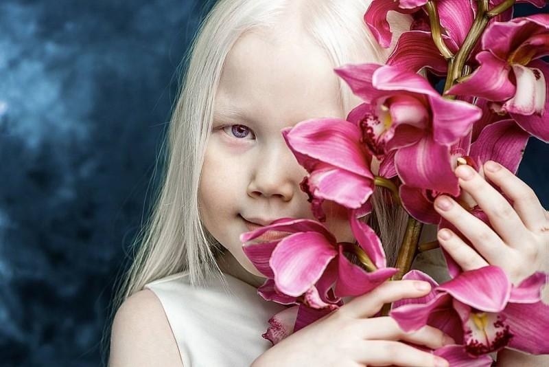 Белоснежка из Сибири: 8-летняя модель с редчайшей внешностью потрясла интернет