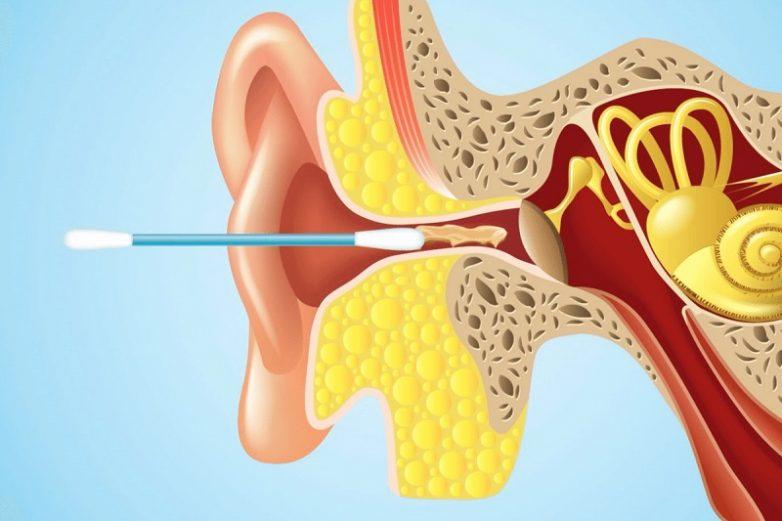 Что цвет ушной серы может поведать о состоянии здоровья?