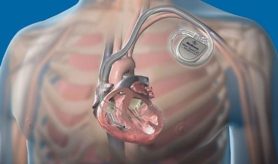 Кардиостимулятор посылает к сердцу электрические импульсы