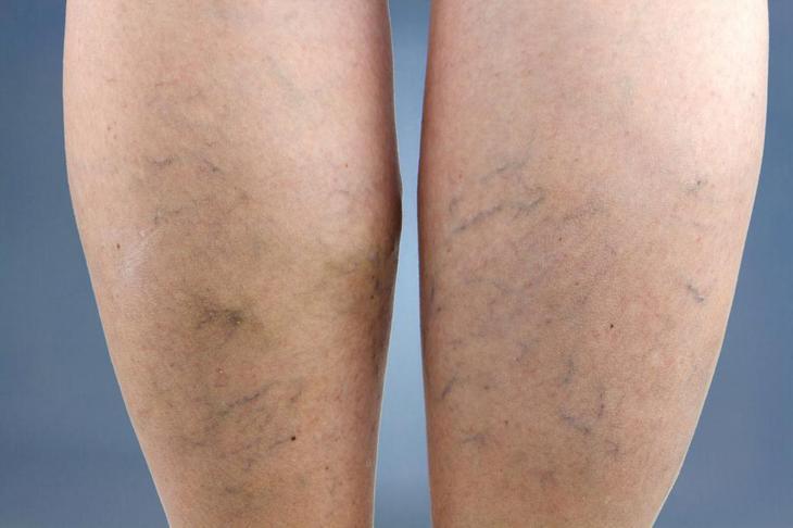 варикоз вен на ногах первые признаки