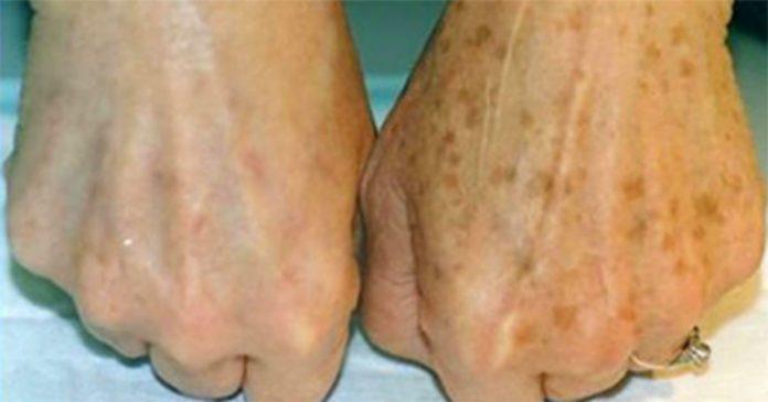 Она заметила коричневые пятна на руках и удалила их с помощью этого