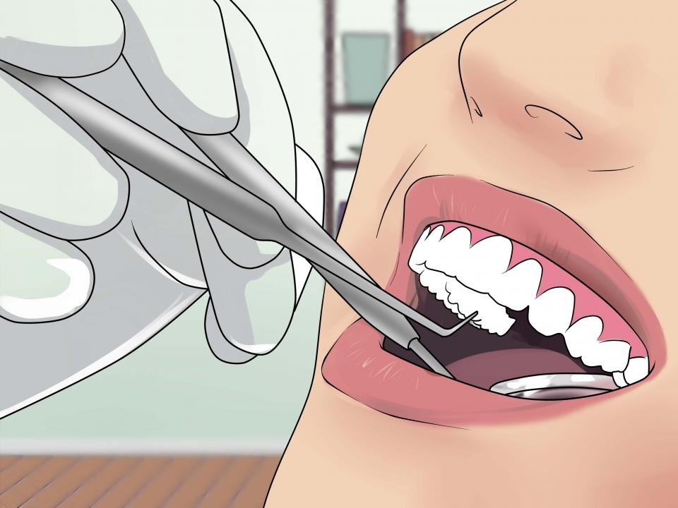 Вырвали зуб болит 4 день что делать 48