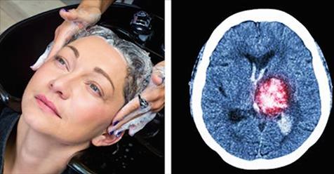Женщина чуть не умерла после того, как помыла волосы в салоне красоты. Это может произойти с каждым!