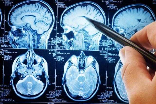Атака на опухоль. Мифы об онкологических операциях