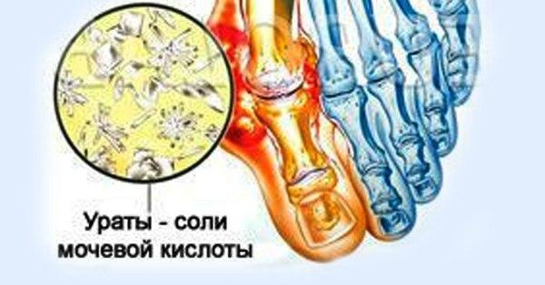 Средства для устранения мочевой кислоты