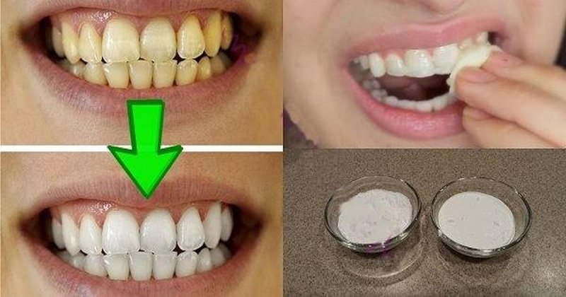 Стоматологи объясняют 7 прив…