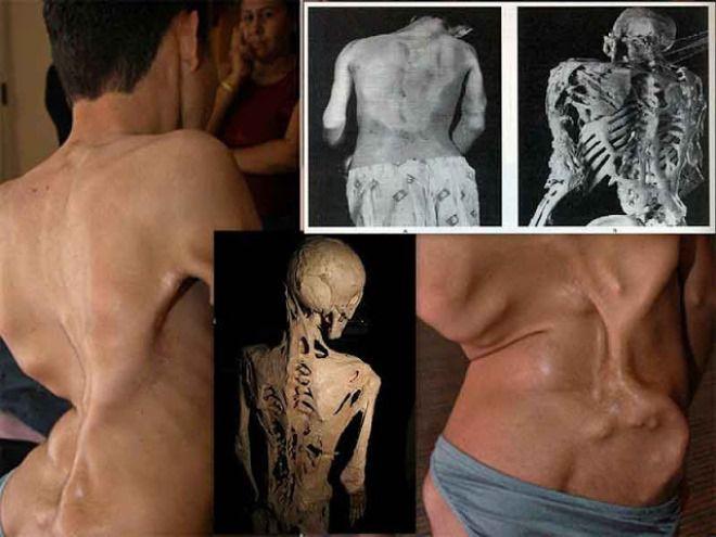 14 болезней, превращающих человека в монстра