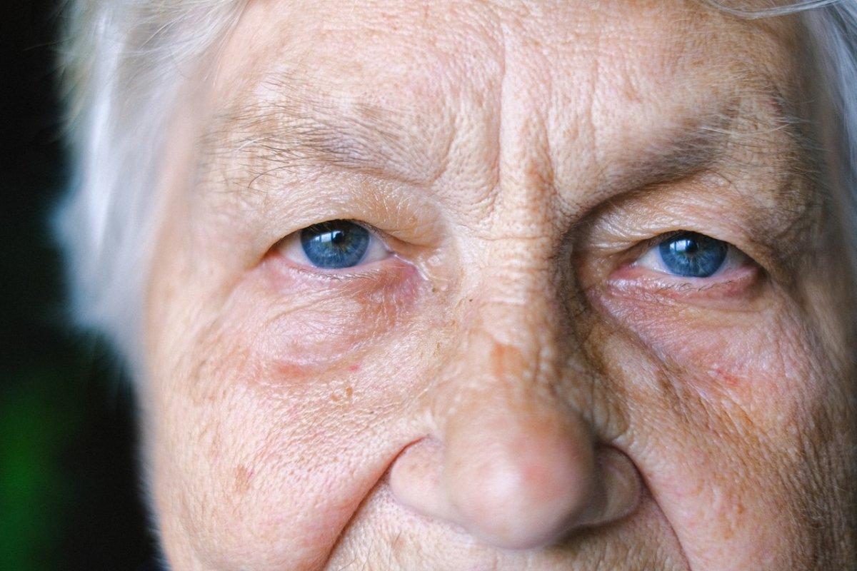 """Повышенный холестерин: врач назвал """"зудящий и болезненный"""" симптом на лице"""