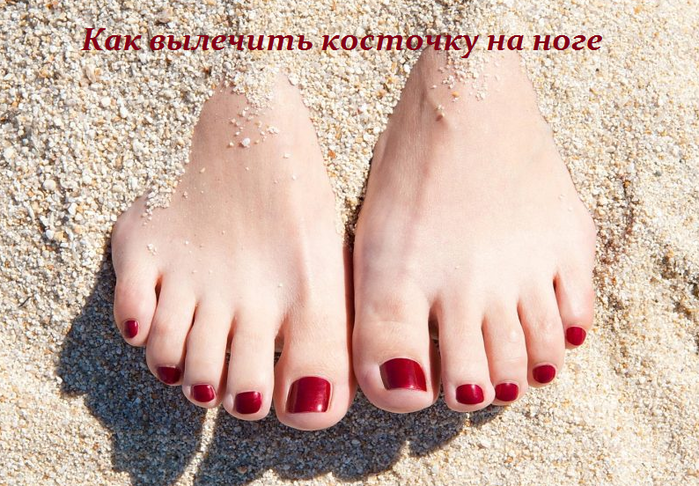 2749438_Kak_vilechit_kostochky_na_noge (700x486, 677Kb)