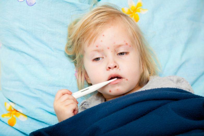 Симптомы и профилактика кори у детей