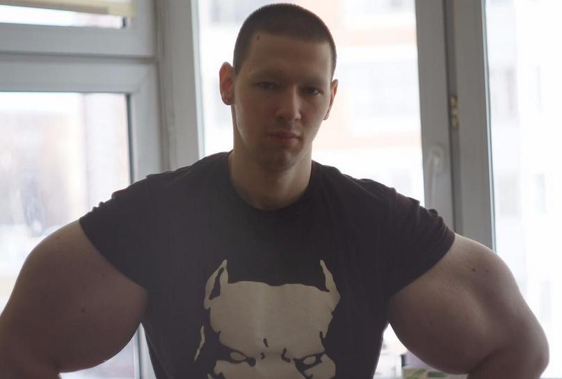 """Сергею Терешину """"Руки Базуки"""" ампутируют руки - или он умрет"""
