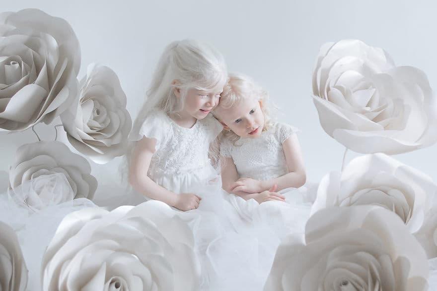 Завораживающие фотографии людей-альбиносов, от которых не оторвать взгляд