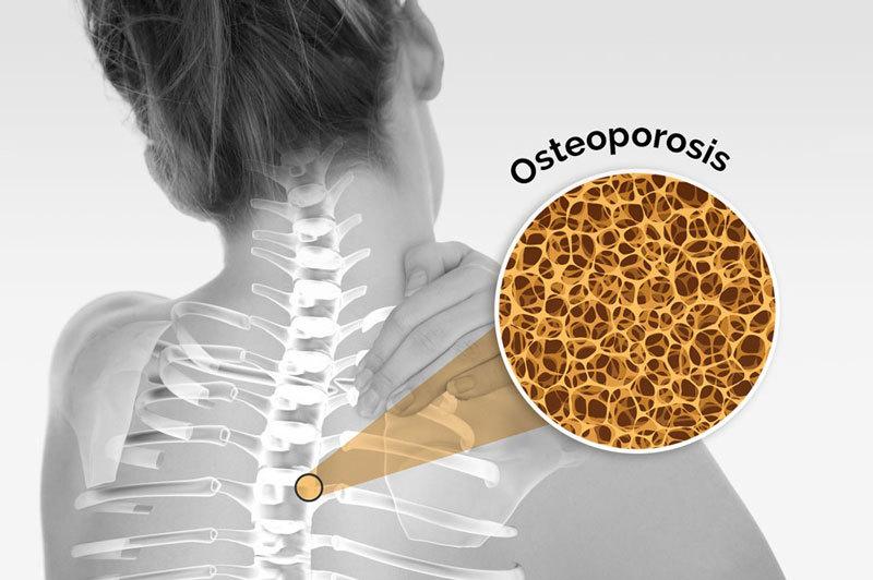 Правда об остеопорозе