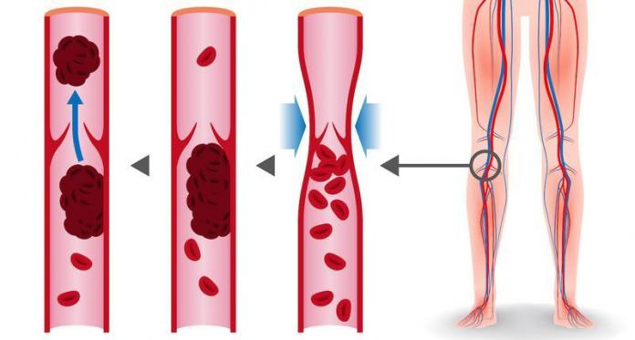 8 продуктов, которые разжижают кровь и способны предотвратить тромбоз