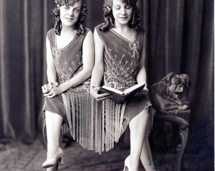Сёстры Хилтон — грустная история сиамских близнецов, ставших актрисами