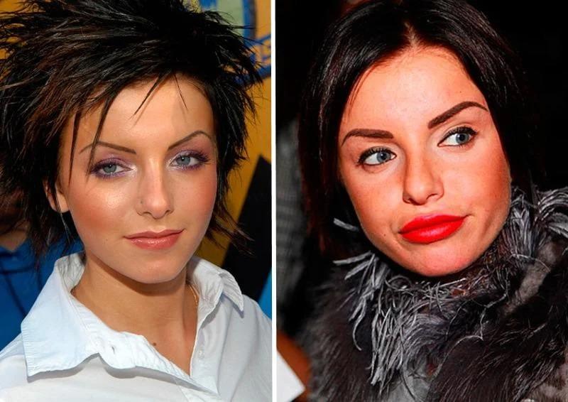 Наши знаменитые женщины, которые увеличили губы и стали выглядеть по-другому