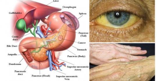 7 предупредительных симптомов ранней стадии рака поджелудочной железы