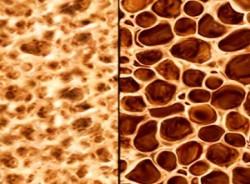 здоровая кость (слева) и остеопороз (справа)