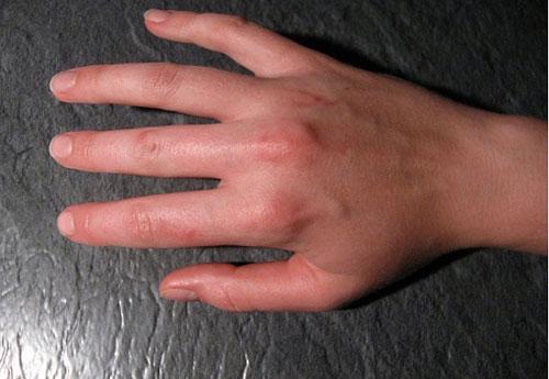 Характеристика ревматизма суставов: причины, симптомы, диагностика и методы лечения