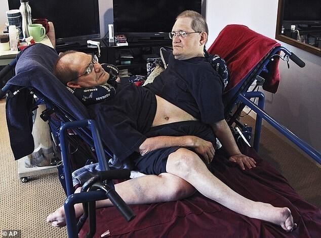 ВСША умерли самые старые сиамские близнецы Ронни иДонни Гэлион