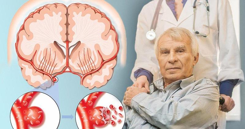 Твое тело предупреждает: 8 сигналов об инсульте в скором времени. Запомни!