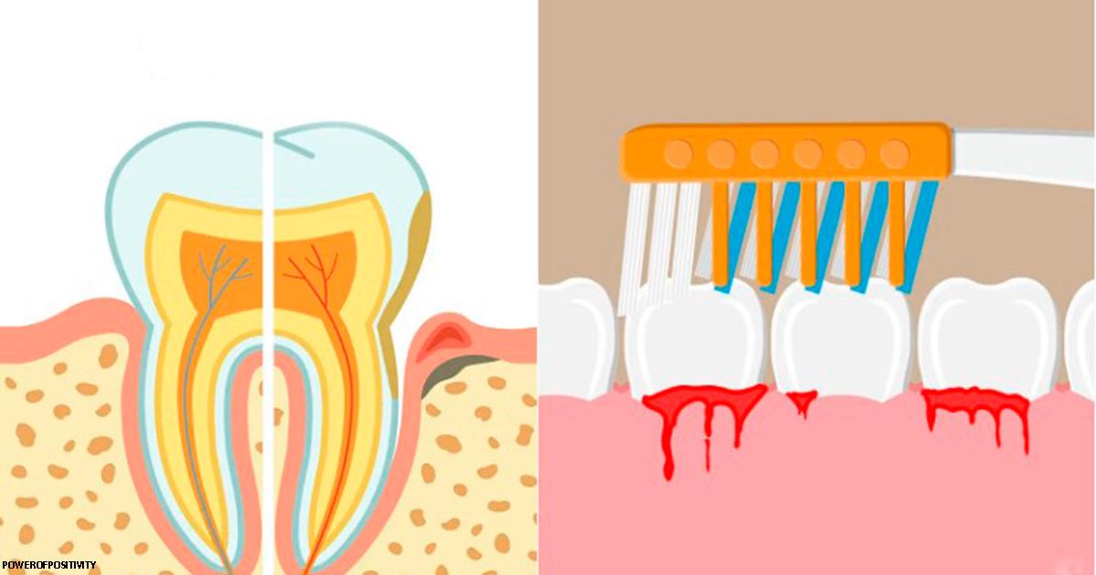 Стоматологи дали 10 Ñоветов о том, что делать, еÑли у Ð²Ð°Ñ ÐºÑ€Ð¾Ð²Ð¾Ñ'очаÑ' деÑны