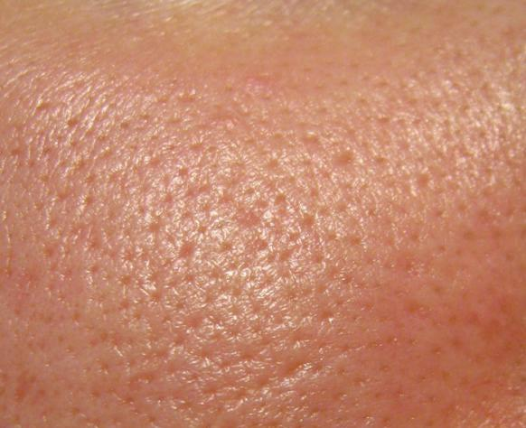 Acne formation: pores become clogged causing pimples and inflammation acne home remedies
