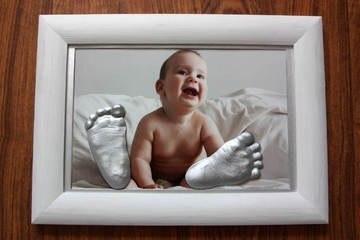 «Закатать ребенка в гипс»
