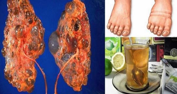 Эти 4 напитка помогут вам очистить ваши почки и фильтровать поток крови