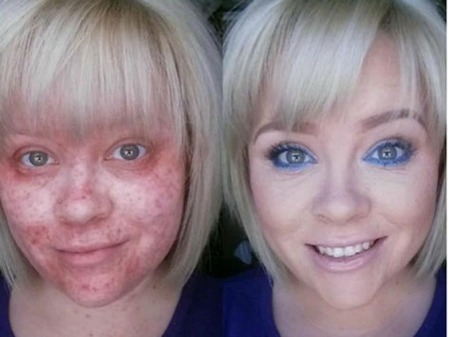 10 случаев, когда макияж действительно сотворил чудо