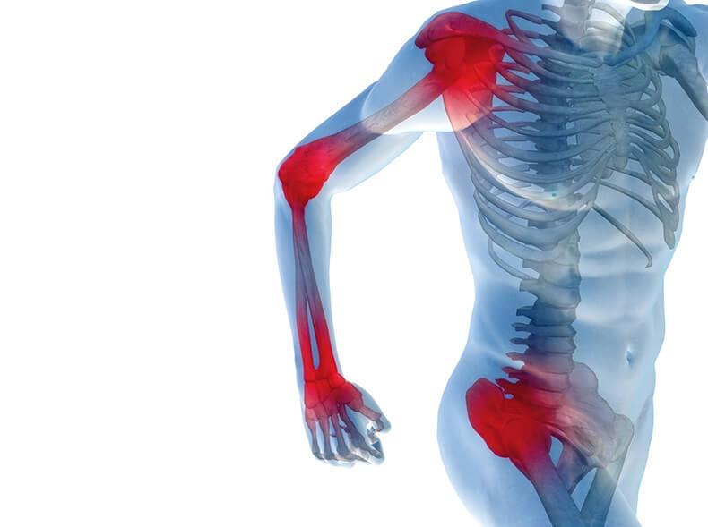 Суставные боли: Рекомендации врача специалиста