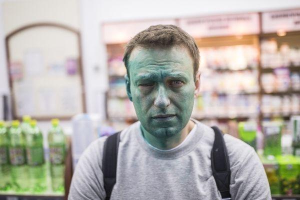Навальный получил химический ожог глаза врезультате нападения сзеленкой