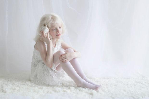 albinos_10