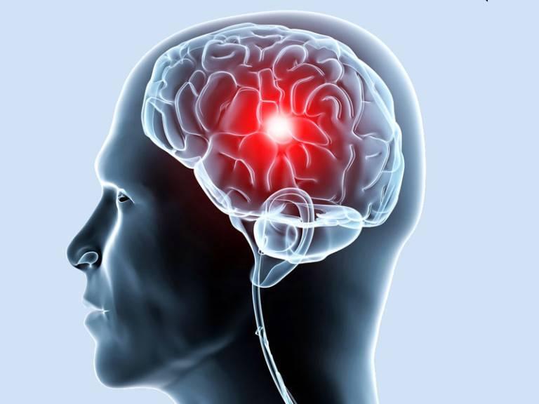 Заболевания сосудов головного мозга, о которых следует знать