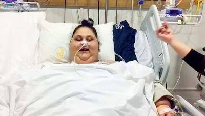 Самая толстая женщина в мире похудела на 140 кг за пять недель