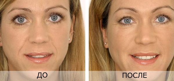 Как победить старость: честные отзывы об уколах гиалуроновой кислоты