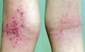 Атопический дерматит. Сохранить здоровье можно
